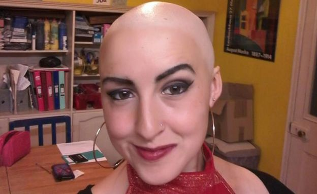 Josie without hair