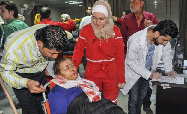 A woman with facial injuries receives first aid at an emergency room in Al Mouwasat Hospital, Damascus