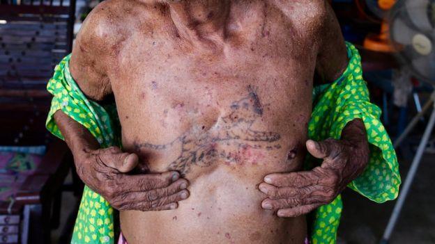 วิชัย ทองสวัสดิ์ วัย 86 ปี ผู้ป่วยโรคมะเร็งผิวหนัง