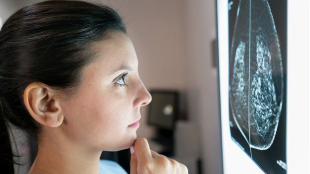 Mujer mirando una mamografía