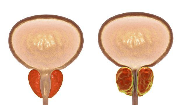 Hiperplasia benigna de próstata (HBP)