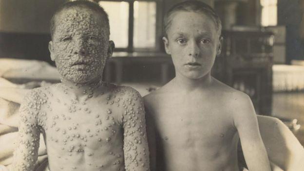 أخوان، أحدهما تلقى اللقاح والآخر لم يتلق اللقاح، في مستشفى عزل المصابين بالجدري