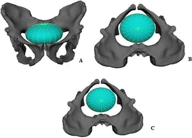 Reconstrucción digital de la pelvis de Australopithecus sediba