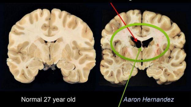 cerebro de aaron hernandez