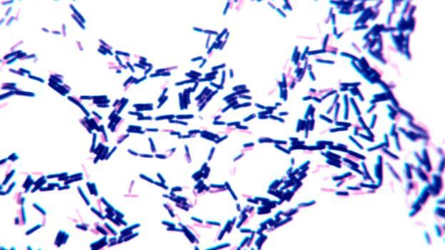 Bacterias grampositivas y gramnegativas