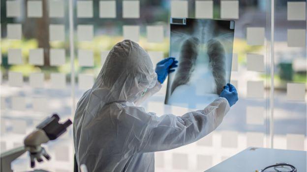 Especialista analisando radiografia de um pulmão