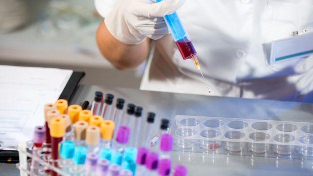 Cientista com amostra de sangue