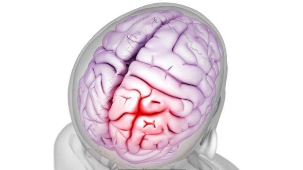 سردردها میتوانند به شدت دردآور باشند