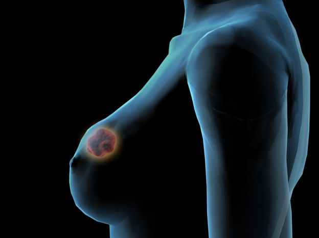 ganglios inflamados ingle mujer tratamiento