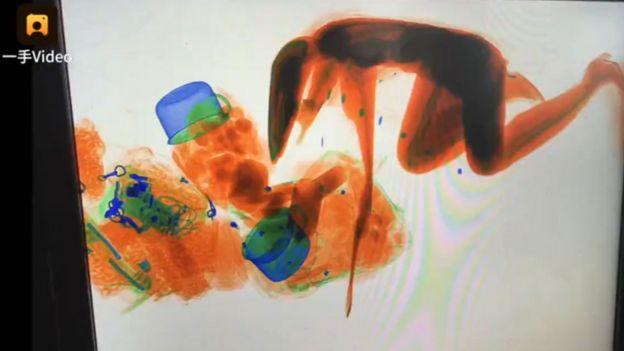 Imagen de rayos X con la silueta de la mujer y sus pertenencias. (Foto: Pear Video)