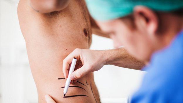 Un médico hace marcas en el abdomen de un hombre con una pluma