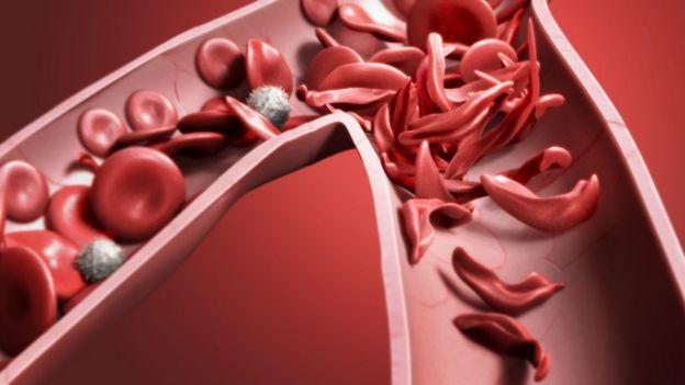 Células falciformes en una arteria