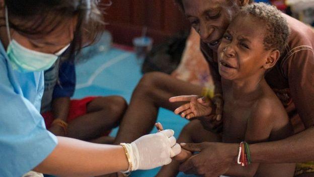 Criança doente é atendida por equipe de saúde