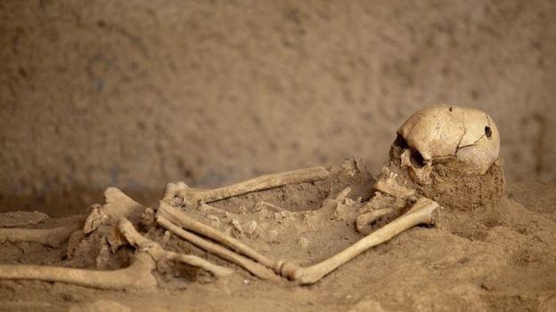 Un esqueleleto con el crneo trepanado