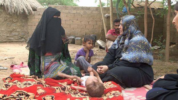 Ashwaq Muharram segura a mão de Abdulrahman, que tem 18 meses, mas o mesmo peso de um bebê de 6