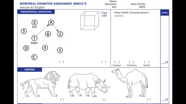An Example Of The Montreal Cognitive Assessment MoCA Neuropsychological Test