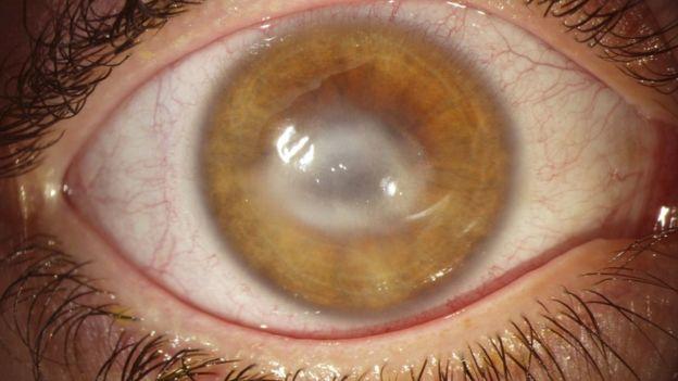 Fiquei cega de um olho por colocar lentes de contato com as mãos ... 45764735eb24