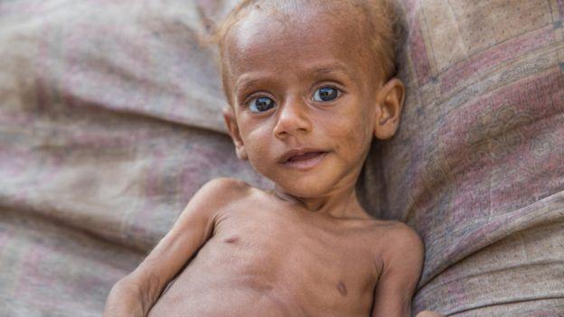 Nusair, 13 months old, lies on a bed in his house in Hudaydah, Yemen