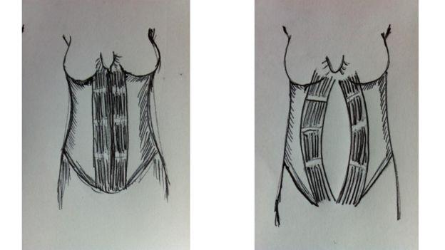 Ilustración de la diástasis de rectos abdominales, cortesía del servicio de Fisioterapia de NHS de Gales