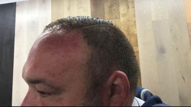 Detalhe da cabeça de Peter Crowley