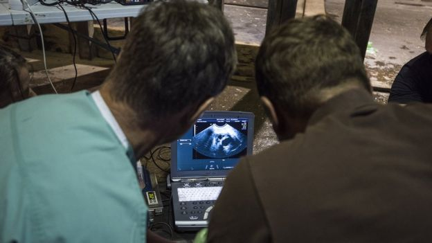 Rhino ultrasound