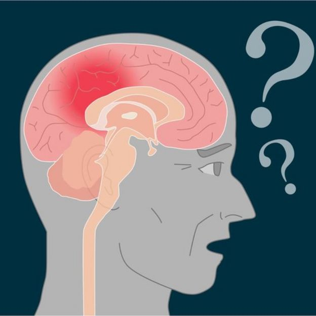 cérebro com alzheimer