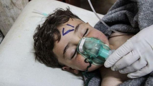 Niño con oxígeno.