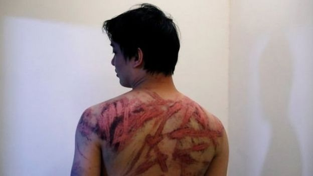 一名市民遭受黑社会成员殴打,向记者显示受伤情况。