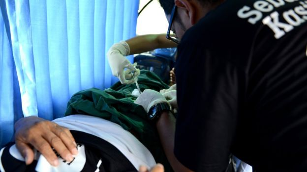 Los médicos se ven aquí realizando una vasectomía en un hombre en Indonesia.