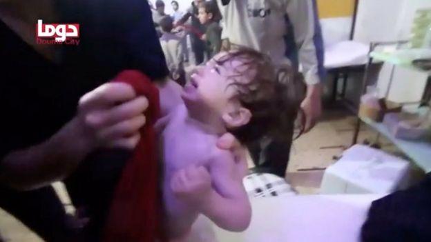 Imagen suministrada por los cascos blancos muestra un menor afectado por el supuesto ataque químico en Duma, este de Damasco