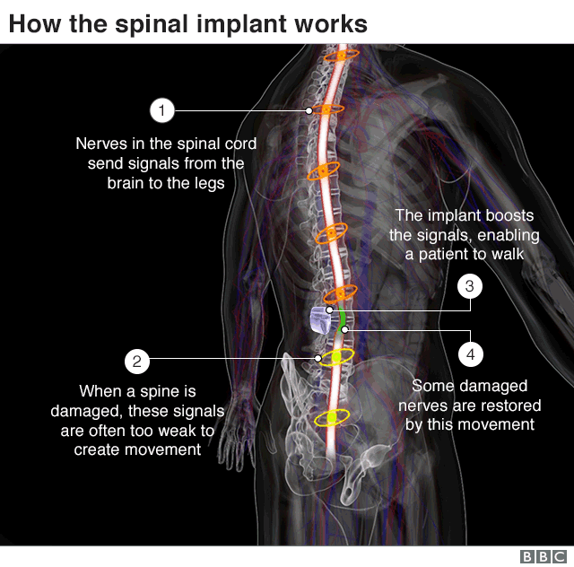 How the spinal implant works