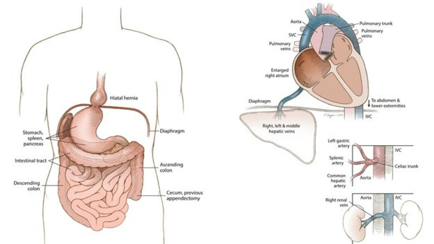 Medical illustration of situs inversus with levocardia