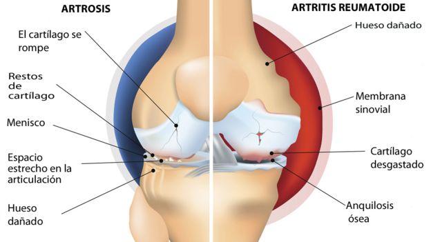 dolor y rigidez articular y perdida de peso