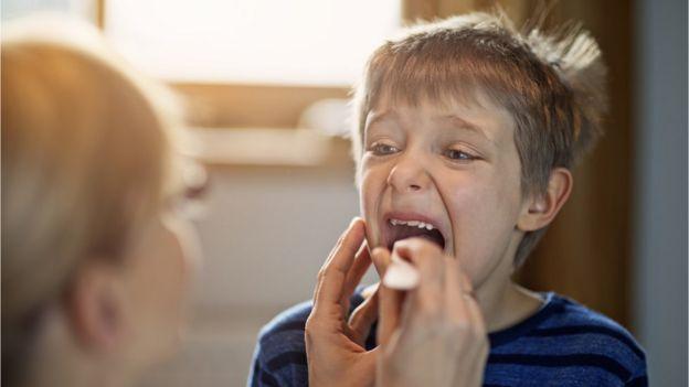 Niño abriendo la boca para mostrarle la garganta al médico