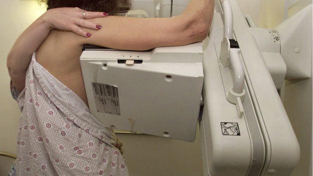 Una paciente haciéndose una mamografía en un hospital de Boston