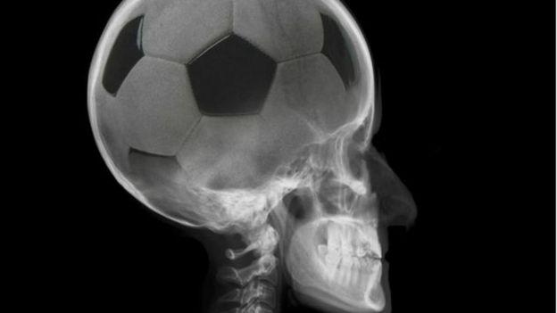 Montagem de cérebro com bola de futebol