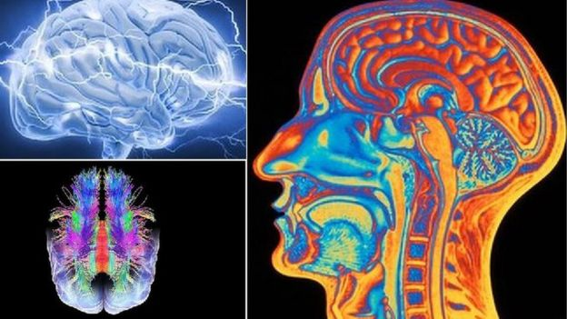 Various scientific images of brains