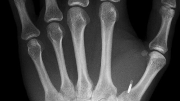 Una imagen de rayos X de una mano con un pequeño microchip implantado