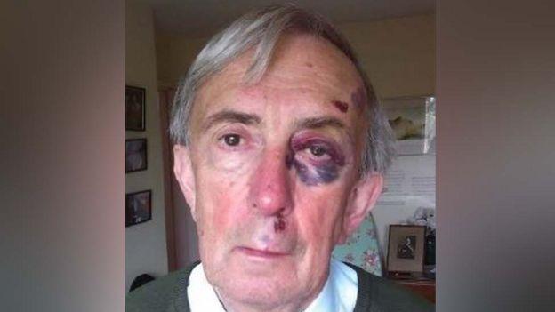 Peter Farquhar com um olho roxo