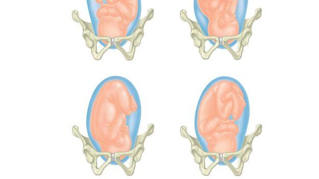 Ilustração com 4 visões de feto encaixado na pelvis
