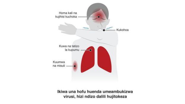 Chati inayoonyesha dalili za coronavirus