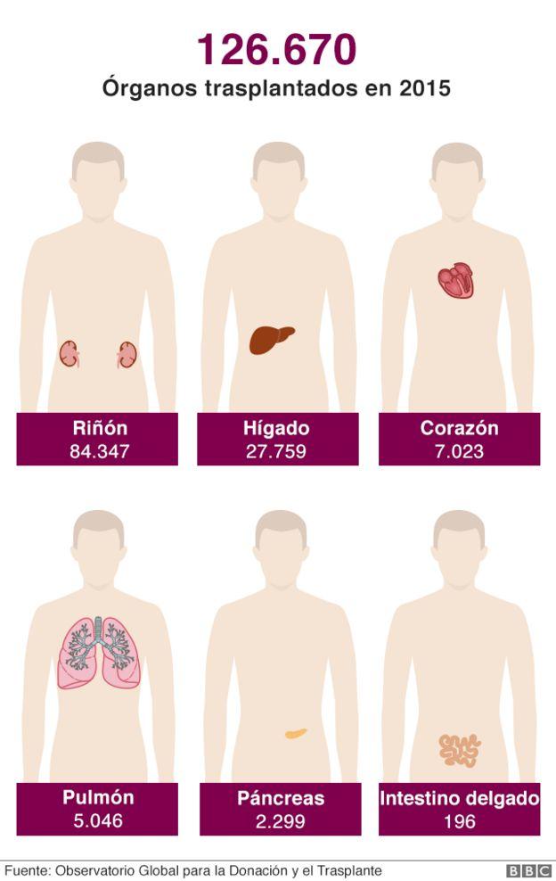 Ilustración de trasplantes de órganos en el mundo en 2015