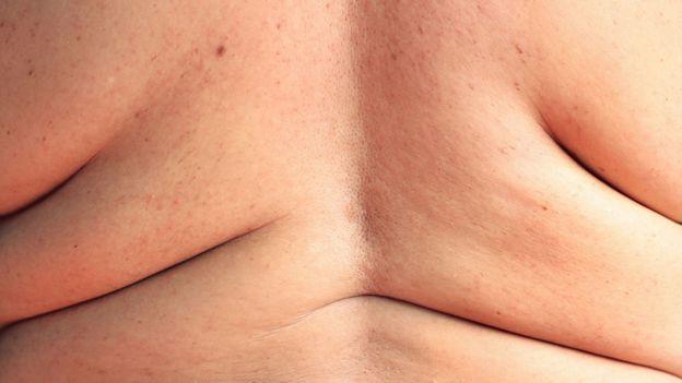 Espalda de mujer con obesidad