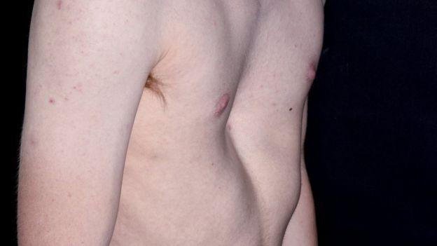 El pecho de un joven de 19 años que padece la enfermedad