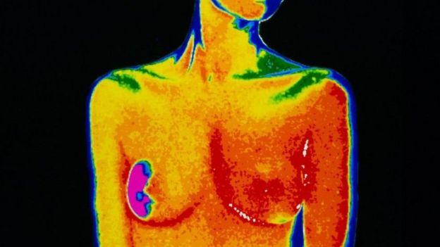 سرطان الثدي