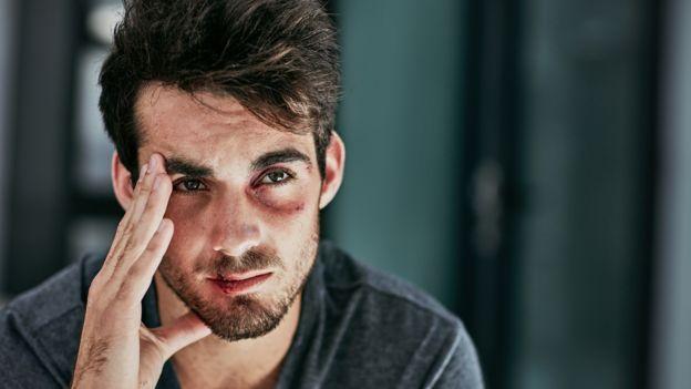 Male violence victim (actor)