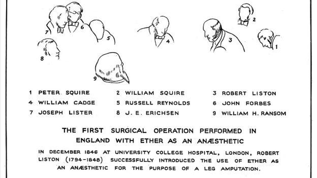"""Plan de la """"primera operación quirúrgica realizada en Inglaterra con éter como anestésico"""", como indica el documento, en el que se nombra a los presentes. Robert Liston es el #3."""