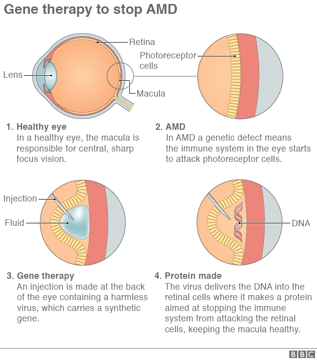 Graphic showing how the gene therapy process works