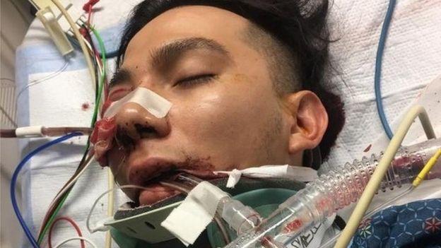 Luis López en el hospital