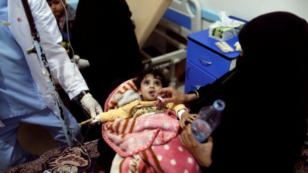 طفلة تعالج من الكوليرا في مستشفى في صنعاء